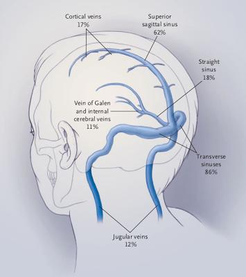 senos venosos de la duramadre - Anatomía Del Sistema Nervioso