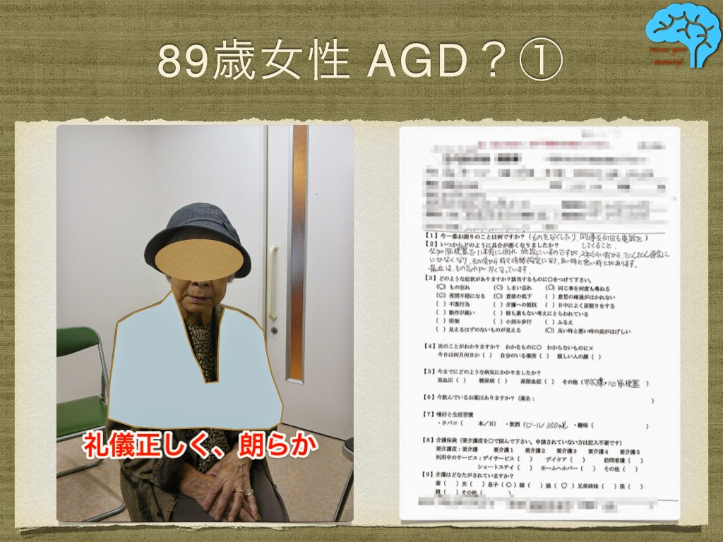 AGDを疑う89歳女性