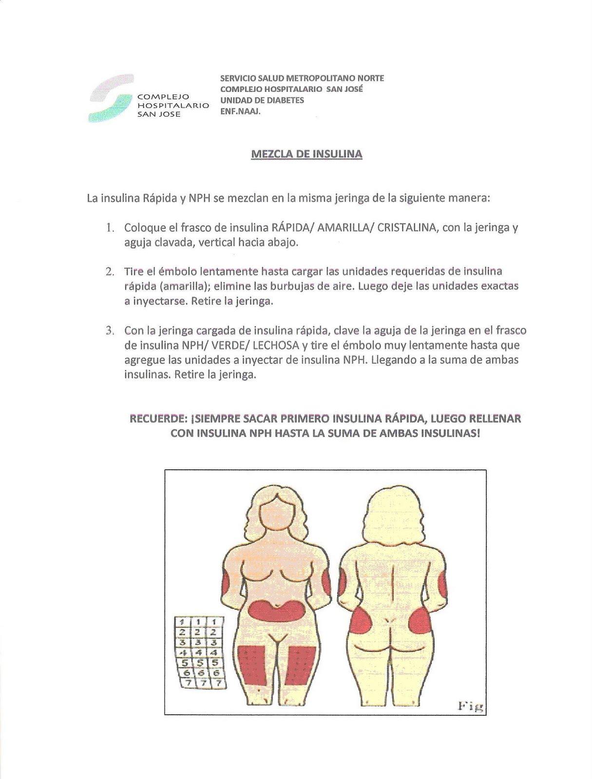 Diabetes Hospital San José: Técnica Administración de Insulina