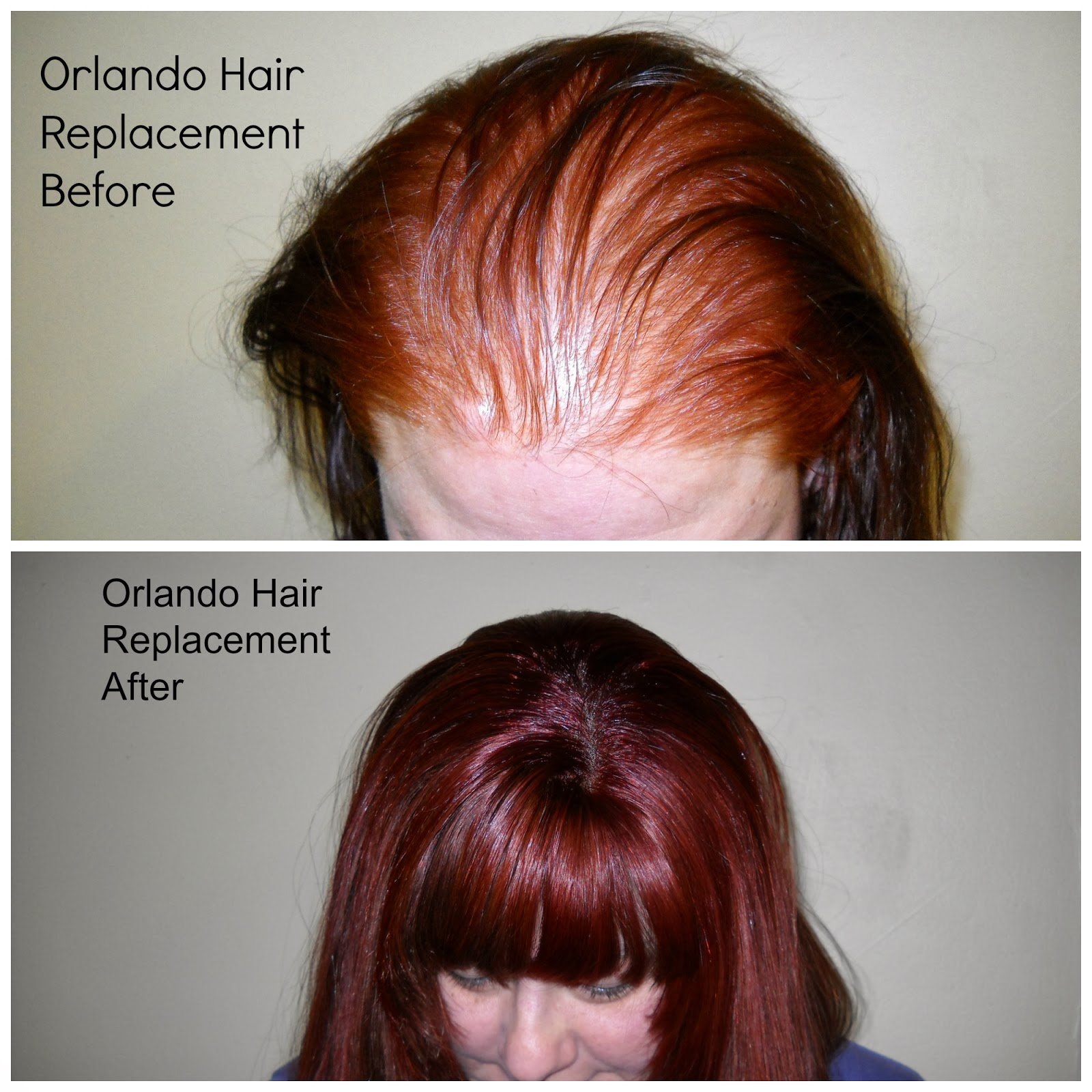 Braidless sew in hair extensions orland shallamars hair sollutions another method for braidless sew in hair extensions is the interlok net wrapping system this is used when more than four rows is needed or for bald spots pmusecretfo Images