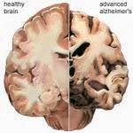 Detection of Alzheimer's