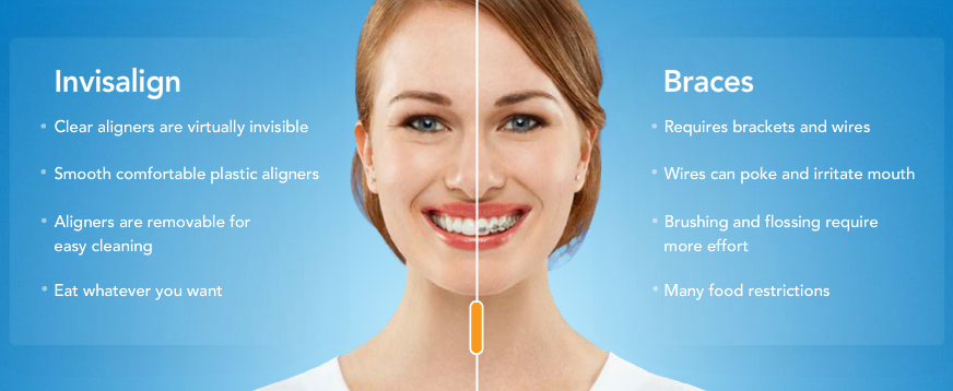 Best Orthodontist In Kitchener Waterloo