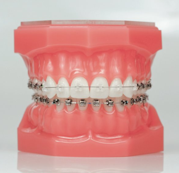 blog damon braces really move teeth faster