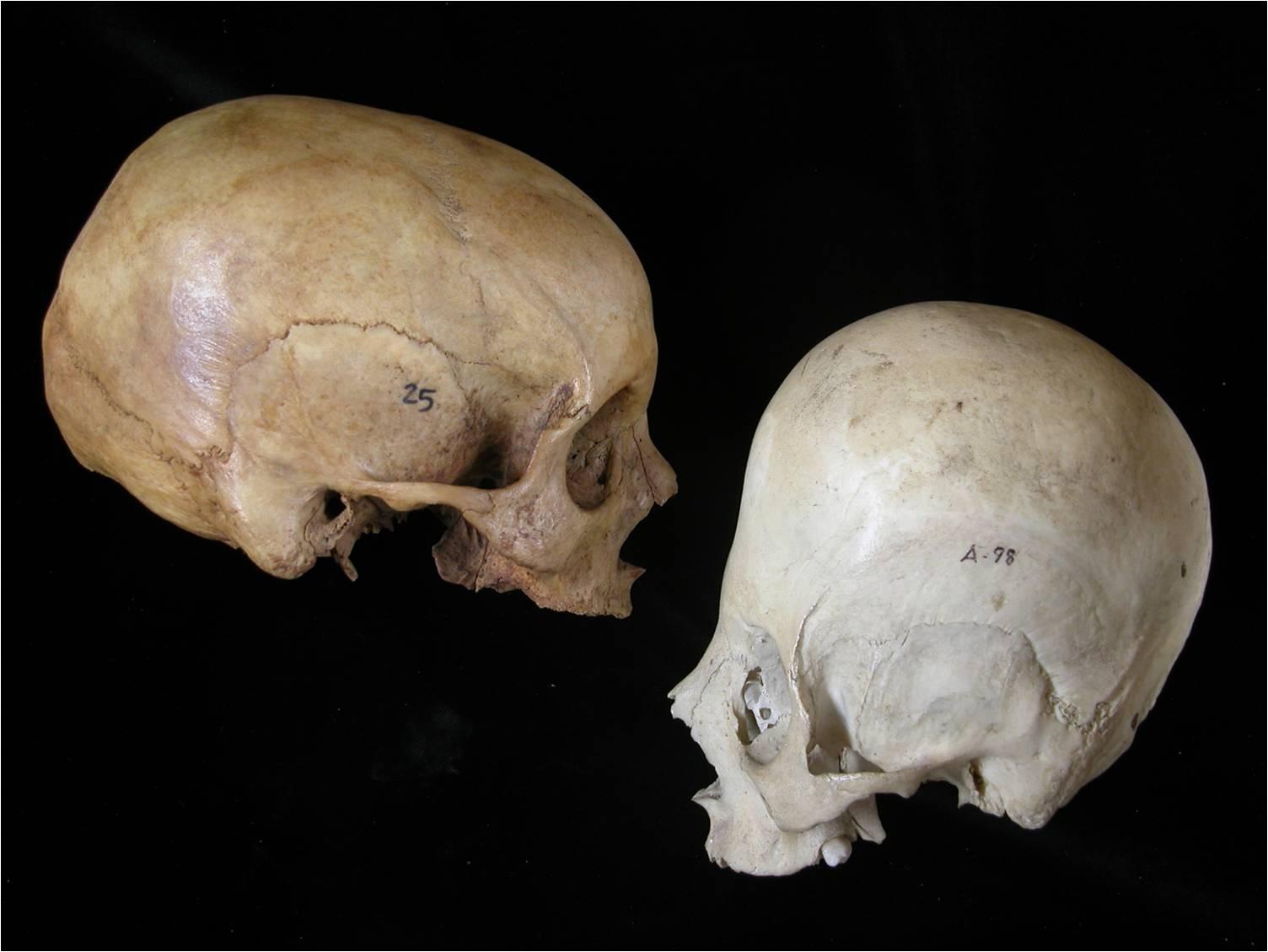Análisis y evolución de las enfermedades a través de los huesos ...