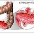 Tìm hiểu về viêm loét đại tràng