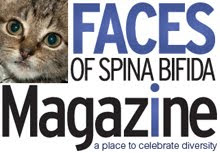 Check Out Faces of Spina Bifida