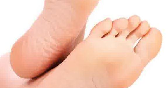 Cara Mengobati Telapak kaki Pecah Pecah alami