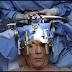UKM Lakukan Pembedahan Otak Semasa Pesakit Sedar