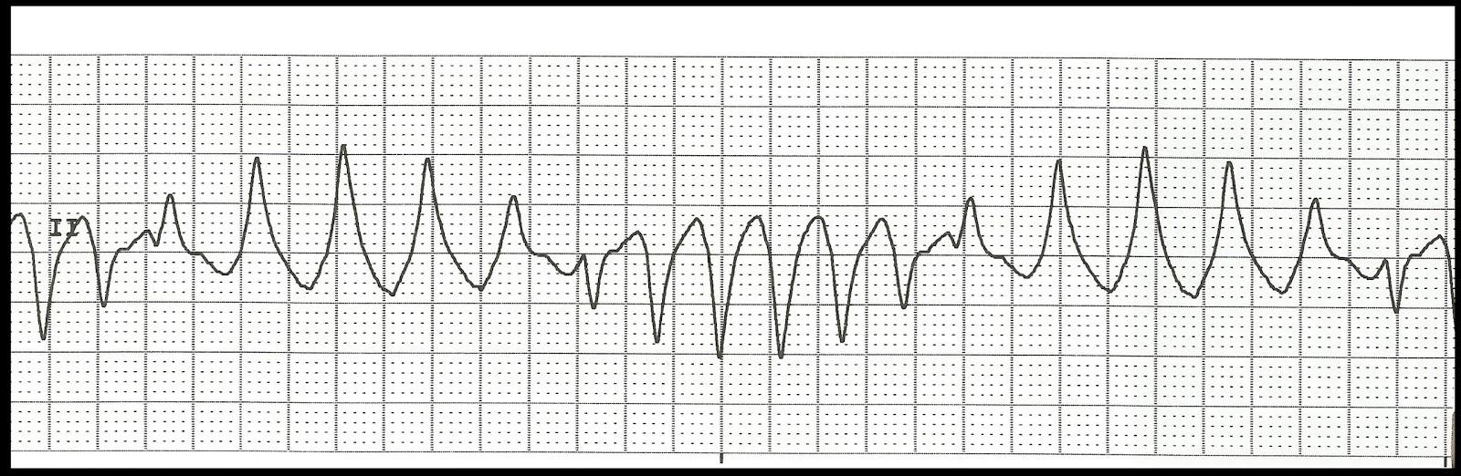 What is a one minute rhythm strip ekg