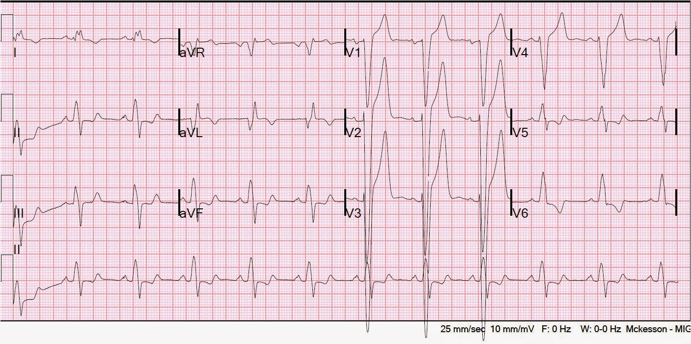Dr smiths ecg blog february 2011 there is left bundle branch block with up to 6 mm of discordant st elevation in v2 and v3 limb leads have neither concordance nor discordance ccuart Choice Image