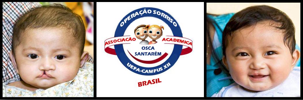 OSCA SANTARÉM - PA