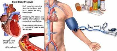 Cara Mengobati Darah Tinggi Paling Mujarab