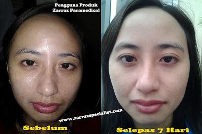testimoni masalah pigmentasi