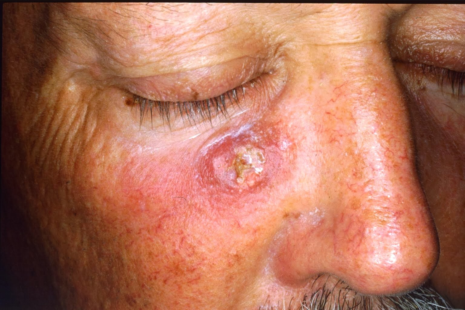 skin cancer definition cure & prevention | wiki itchy mind