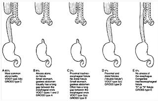 Hipertensi Portal Pdf