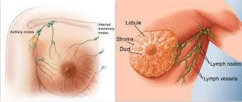 obat herbal penyakit kanker payudara