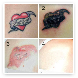 Tattoo Removal on Best Tattoos Design   Chopper Tattoo Website Design   Page 315