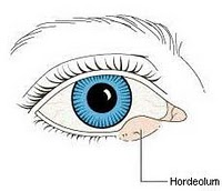 Mata Bintitan Dan Cara Mengobatinya