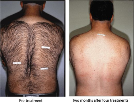 Laser Hair Removal For Men Hair Removal