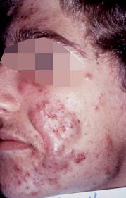 isotretinoina-acne