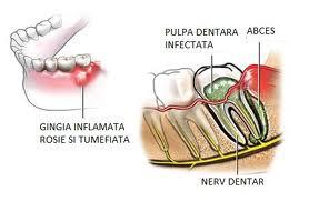 Rezolvati fara antibiotice abcesele dentare