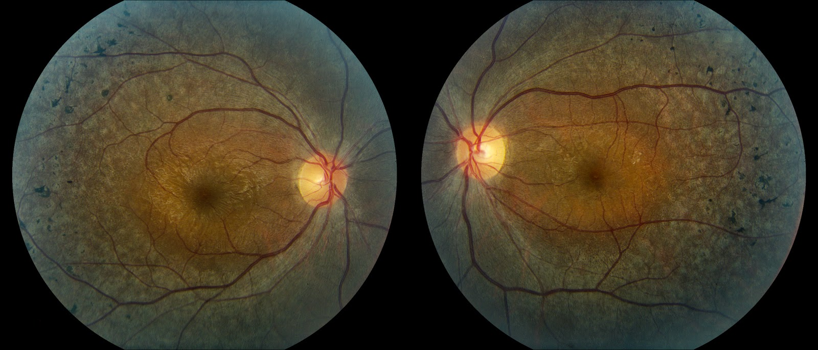 retinitis pigmentosa As of now, there is no specific treatment for retinitis pigmentosa in the past, there were reports that a supplement of 15,000 iu of vitamin a and possibly fish oil supplements might be of some benefit however, in november 2012, the foundation fighting blindness updated its information on the.