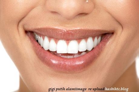 Cara Terbaik Memutihkan Gigi Secara Alami
