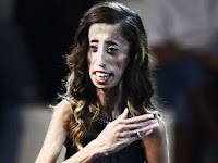 Lizzie Velasquez dijuluki Wanita Terjelek di Dunia