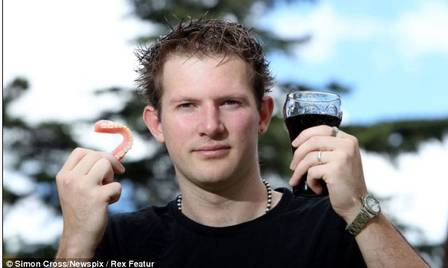 Homem que bebe oito litros de refrigerante por dia perde todos os dentes
