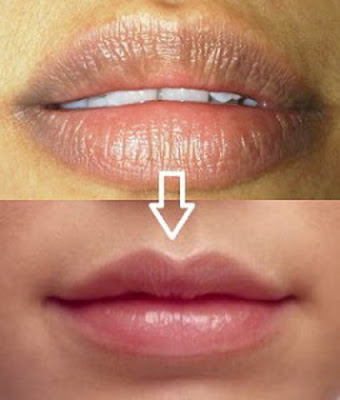 Tips How to Make Lips Look Thin Naturally