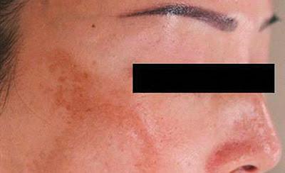 La piel y los nervios