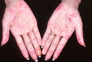 9 uncommon skin conditions - Photo 1 - Pictures - CBS News