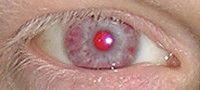 Ojo albino