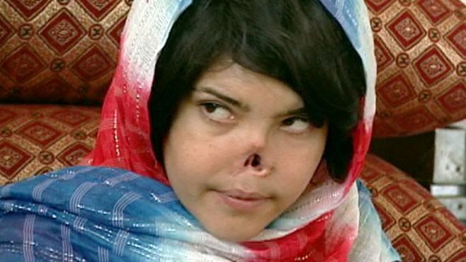 Talk, what Aisha afghan teen