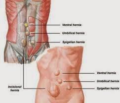 Obat Alami Penyakit Hernia