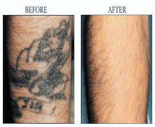 Best tattoo removal in san jose ca 72-4