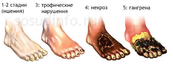 Укрепить сосуды на ногах при сахарном диабете
