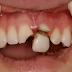 Mengatasi gawat darurat seputar gigi dan mulut