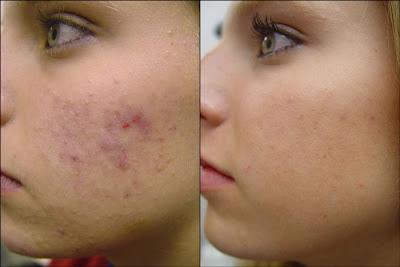 Cystic Pimple Treatment