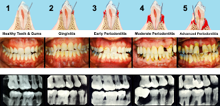 showing stages of periodontitis