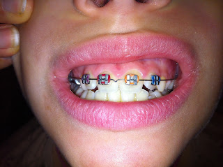 Orthodontie photo