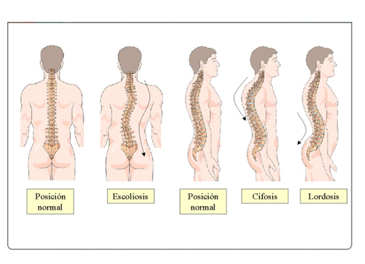 La curvatura de la columna vertebral al bebé de un año
