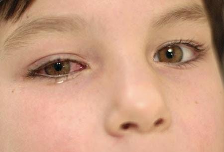 6 Gejala Mata Mengalami Infeksi