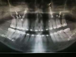 Temporamandibular TMJD jaw operation