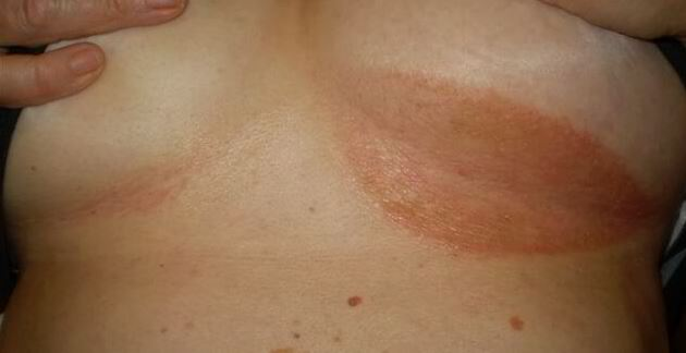 Home Remedies and Tips for Breast Infection