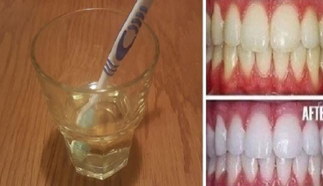 Ternyata Anda Bisa Putihkan Gigi Dalam Waktu Tiga Menit Paket