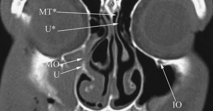 Anatomy for radiology