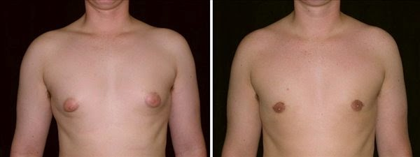 Puffy nipples and gynecomastia-Sacramento, CA