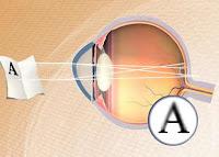 astigmatismo ocular