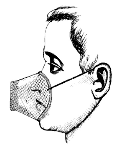 "Continuous inhalation of a volatile medicament by means of an apparatus worn over the nose and a so called ""respirator"" is by no means novel idea but the cost and clumsiness of most the appliances devised for the purpose have recently prevented this method of treatment from being carried out upon a sufficiently extended scale to afford a reliable test of its efficiency."